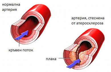 При атеросклероза – на съдов специалист /ангиолог/