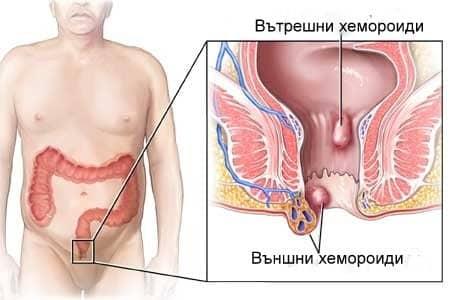 Хемороидите – причини, лечение, диета