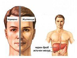 Опасен ли е хепатит В?