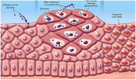 Как се причинява HPV вирусът