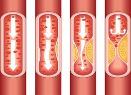 Коронарната болест – профилактика и лечение