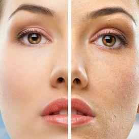 Какви са ползите от Мезотерапията против стареене и подмладяване на кожата?