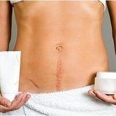 Нормално ли е да боли раната след секцио няколко месеца и година след раждането?