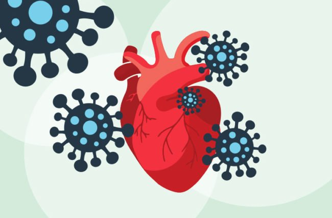 COVID-19 и сърцето